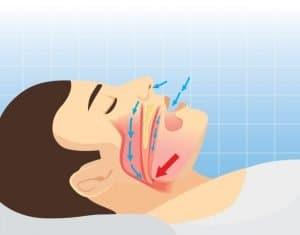 sleep airway diagram